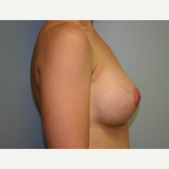 Breast Augmentation after 3560739