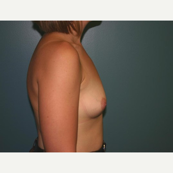 Breast Augmentation before 3560739