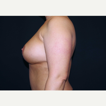 35-44 year old woman treated with Breast Implants after 3441091