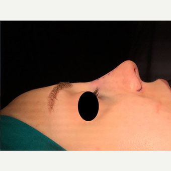 25-34 year old woman treated with Rhinoplasty after 3211800