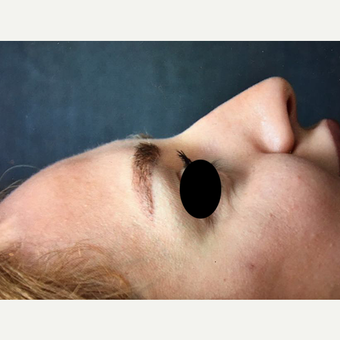 25-34 year old woman treated with Rhinoplasty before 3211800