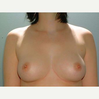 19 y/o Transaxillary Submuscular Breast Augmentation before 3066320