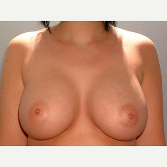 19 y/o Transaxillary Submuscular Breast Augmentation after 3066320