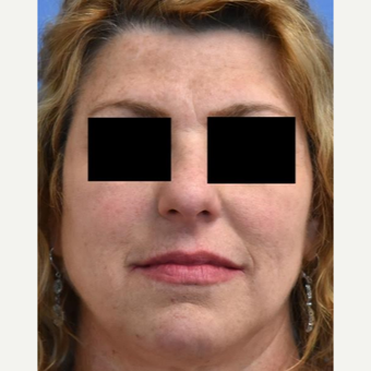 45-54 year old woman treated with Skin Rejuvenation before 3036854