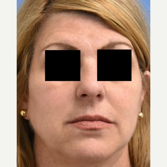 45-54 year old woman treated with Skin Rejuvenation after 3036854