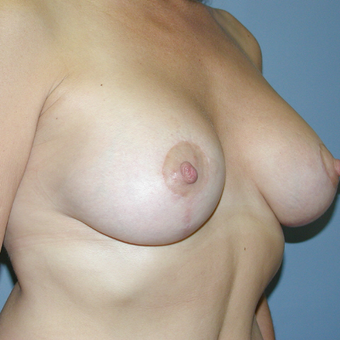 47 year old woman treated with Breast Lift after 3042744