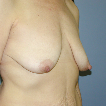 47 year old woman treated with Breast Lift before 3042744