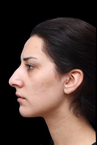 25-34 year old woman treated with Rhinoplasty before 2998329