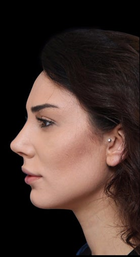 25-34 year old woman treated with Rhinoplasty after 2998329