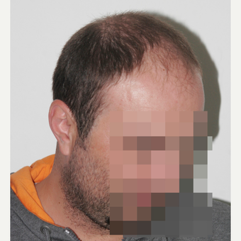 33  years old man treated with FUE Hair Transplant before 3068910