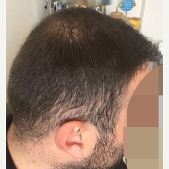 33  years old man treated with FUE Hair Transplant after 3068910
