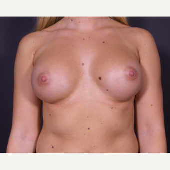25-34 year old woman treated with Breast Implants after 3585659