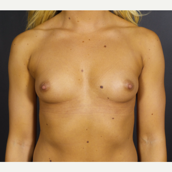 25-34 year old woman treated with Breast Implants before 3585659