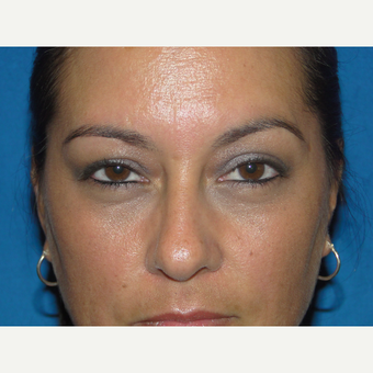 Lower Eyelid Surgery after 3738820