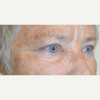 67 year old female, who underwent cosmetic upper blepharoplasty to treat saggy heavy upper eyelids. after 3090249