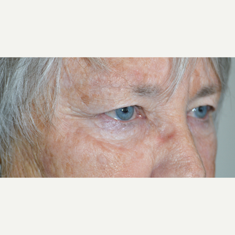 67 year old female, who underwent cosmetic upper blepharoplasty to treat saggy heavy upper eyelids. before 3090249