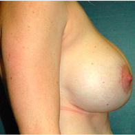 32 year old woman treated with Breast Lift with Implants after 3665913