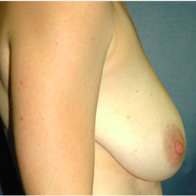 32 year old woman treated with Breast Lift with Implants before 3665913