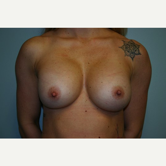 Breast Augmentation before 3444129