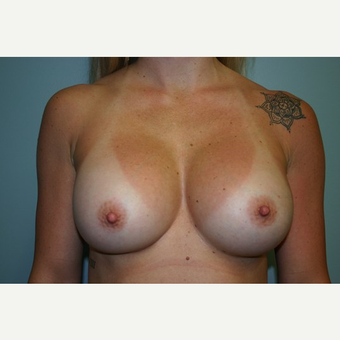 Breast Augmentation after 3444129
