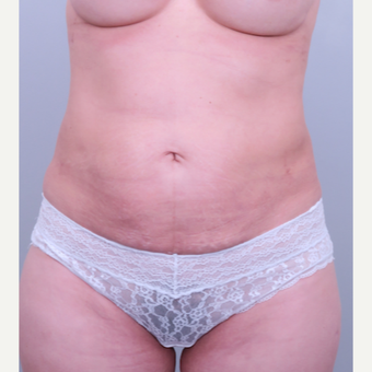 45-54 year old woman treated with Liposuction after 3321537