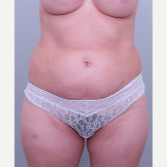 45-54 year old woman treated with Liposuction before 3321537