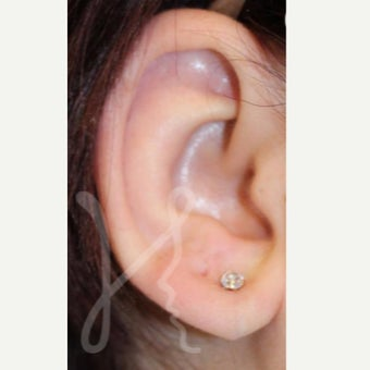 25-34 year old woman treated with Ear Lobe Surgery after 1736899