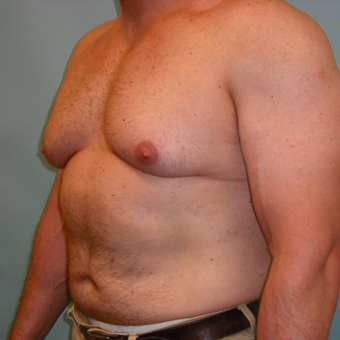 35-44 year old man treated with Male Breast Reduction before 3725227
