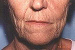 Advanced aging of the mouth. Phenol  perioral peel among other treatments.