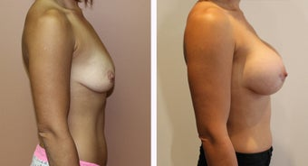 35-44 year old woman treated with Breast Augmentation before 3300095