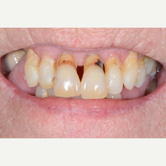65-74 year old woman treated with All-on-4 Dental Implants before 3474208