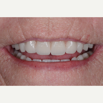 65-74 year old woman treated with All-on-4 Dental Implants after 3474208
