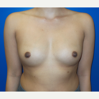 18-24 year old woman treated with Breast Augmentation before 3252477