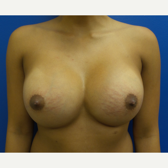 18-24 year old woman treated with Breast Augmentation after 3252477