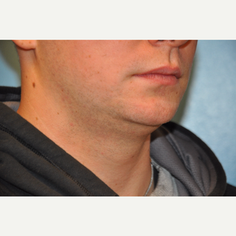 25-34 year old man treated with ThermiTight and Chin Implant before 3059746