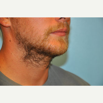 25-34 year old man treated with ThermiTight and Chin Implant after 3059746