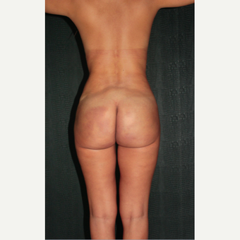 43 year old woman treated with buttocks Silicone Injections (Biopolimeros) before 1820572