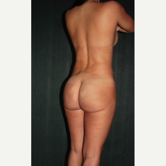 43 year old woman treated with buttocks Silicone Injections (Biopolimeros) 1820572