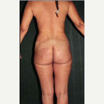 43 year old woman treated with buttocks Silicone Injections (Biopolimeros) after 1820572