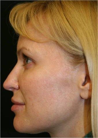 42 Year old female treated for early facial volume loss and aging with Sculptra injections after 718200