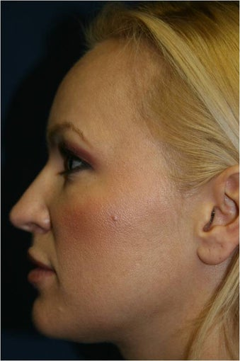 42 Year old female treated for early facial volume loss and aging with Sculptra injections before 718200