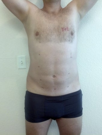 Abdominal etching after 1214925