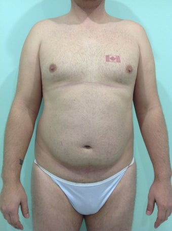 Abdominal etching before 1214925