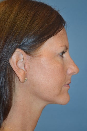 55 year old female who underwent mini-lift after 1045902
