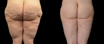 18-24 year old woman treated with Liposuction before 2025433
