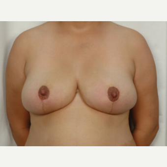25-34 year old woman treated with Breast Reduction after 3026844