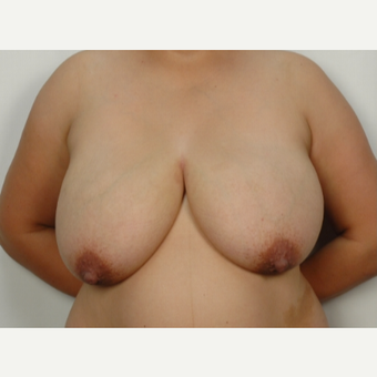 25-34 year old woman treated with Breast Reduction before 3026844