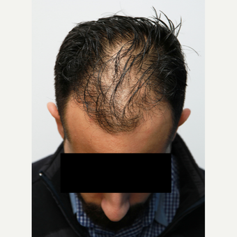 35-44 year old man treated with Organic Hair Transplant before 3172515