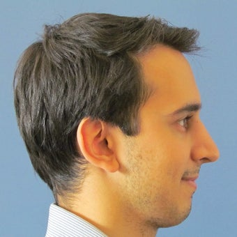 25-34 year old man treated with Rhinoplasty after 2087838