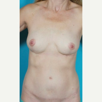 Painless/Drainless Abdominoplasty Technique, Bilateral Breast Implant Removal and Mastopexy, after 2514425
